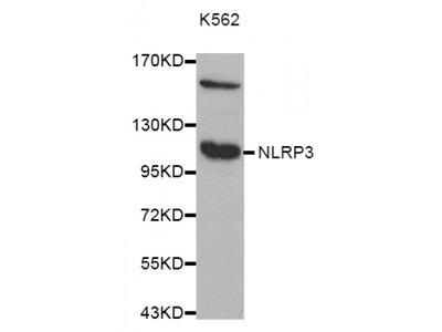 Anti-NALP3 antibody