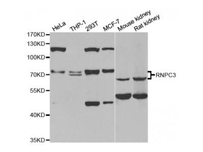 Anti-RNPC3 antibody