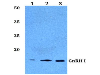 anti GNRH1 / Progonadoliberin-1 (11-60)