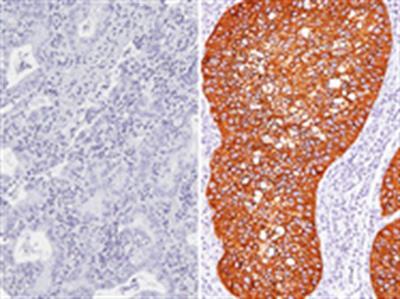 Desmoglin 3 + CK5 Antibody