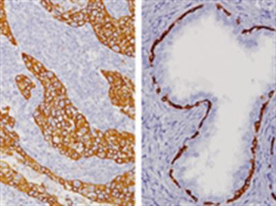 Cytokeratin HMW [34βE12] Antibody