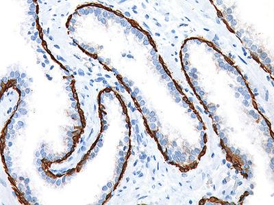 CK HMW [34βE12], 3X Antibody