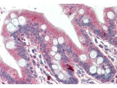 DTX2 Antibody