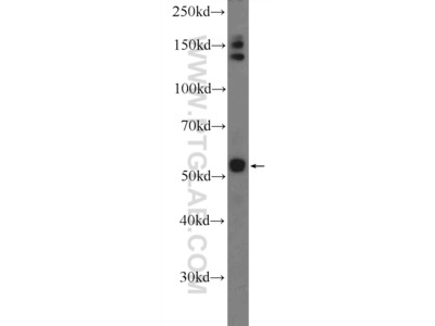 PLAGL1 Antibody