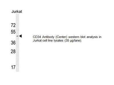 CD34 Antibody (Center)