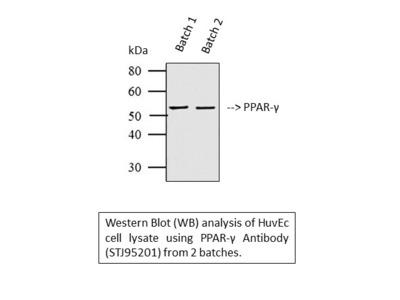 Anti-PPAR-Gamma antibody (STJ95201)