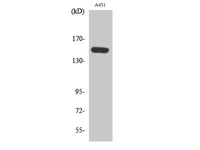 Anti-Phospho-PLC Beta (S1105) antibody (STJ90766)