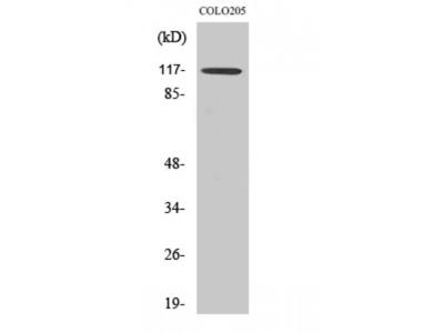 Anti-TIF Alpha antibody (STJ96019)