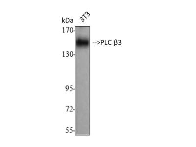 Anti-PLC Beta antibody (STJ95154)