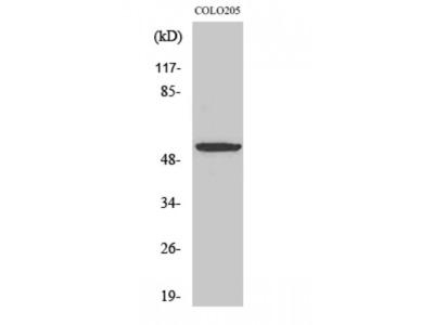 Anti-EP4 antibody (STJ92935)