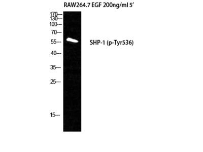 Anti-Phospho-SH-PTP1 (Y536) antibody (STJ90740)