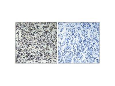 Anti-Thymidine Kinase antibody (STJ96013)