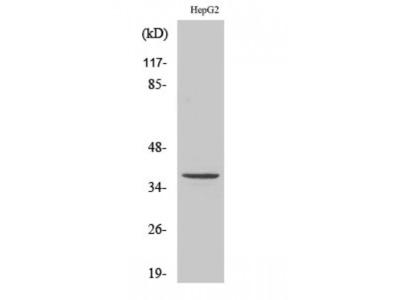 Anti-T2R39 antibody (STJ95874)