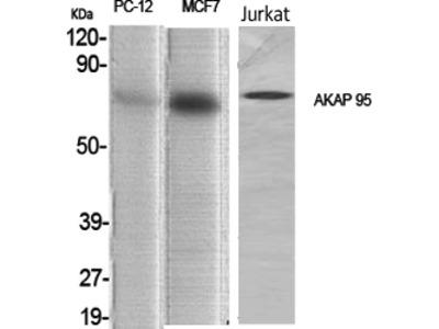 Anti-AKAP 95 antibody (STJ91533)