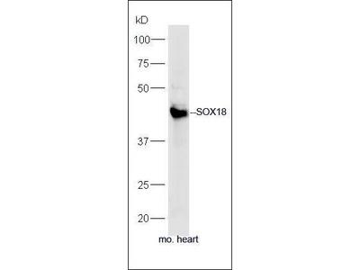 SOX18 antibody