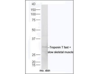 Troponin T fast + slow skeletal muscle antibody