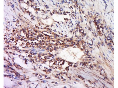 DAND5 antibody
