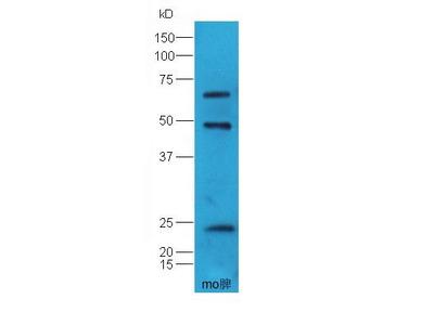 TAP1 antibody