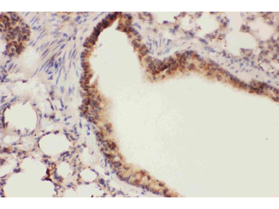 Anti-15 Lipoxygenase 1/ALOX15 Picoband Antibody