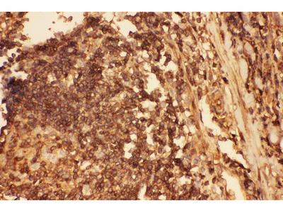 Anti-Cofilin/CFL1 Picoband Antibody