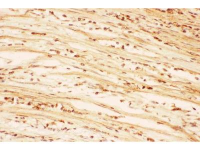 Anti-AKT2 Picoband Antibody