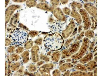 Anti-CD10/Neprilysin Antibody