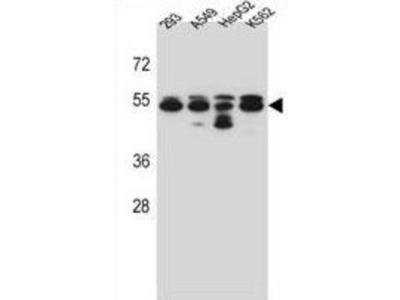 Tubulin Beta-8 Chain (TUBB8) Antibody
