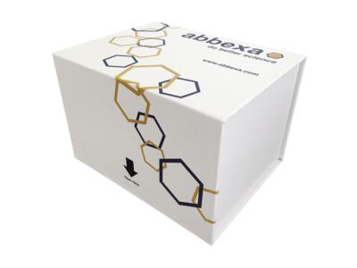 Human Deoxyribonuclease B Antibody (Anti-DNaseB) ELISA Kit