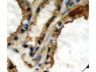 TG / Thyroglobulin Monoclonal Antibody