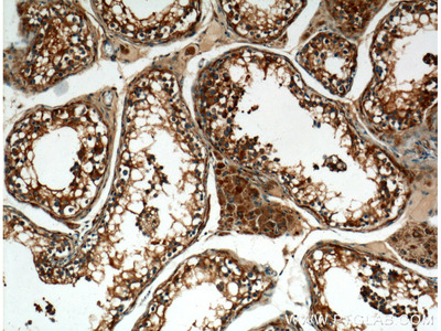 ALDH1A2 antibody