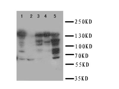 RFC1 / RFC Polyclonal Antibody