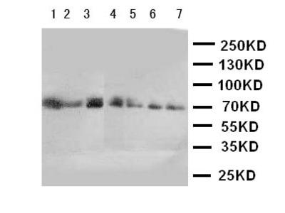 CYP11B1 Polyclonal Antibody