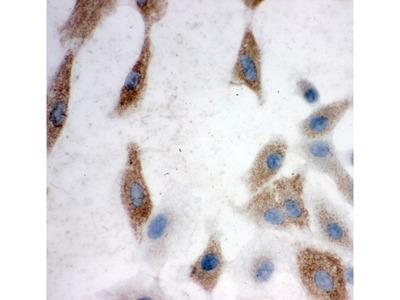ITGAV/Integrin Alpha V/CD51 Antibody