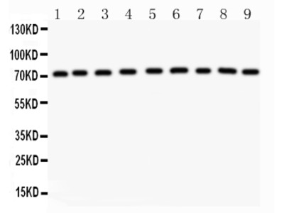 Growth Hormone Receptor / GHR Antibody