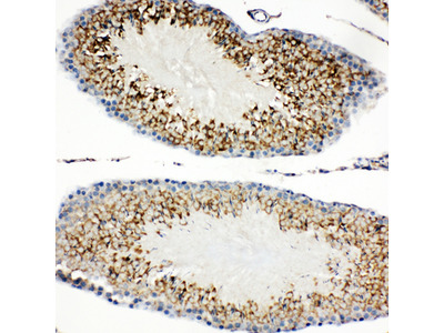 HAVCR1 / KIM-1 Antibody