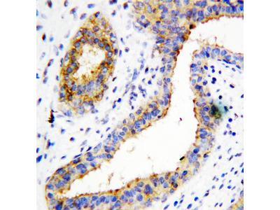 BCAT1 / ECA39 Antibody
