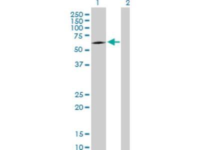 CMG-2 / ANTXR2 Antibody