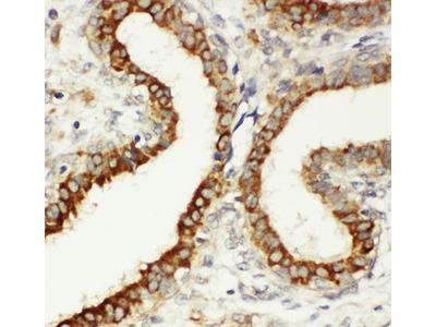 ITGB3 / Integrin Beta 3 / CD61 Antibody