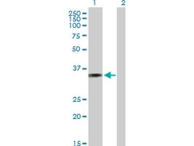 AMMECR1 Antibody