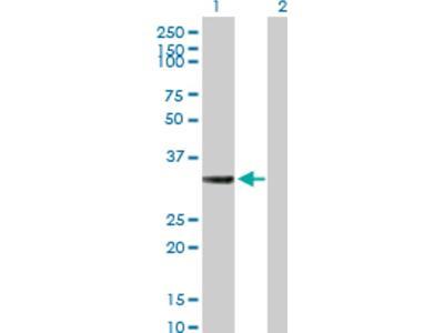 HSD17B7 Antibody