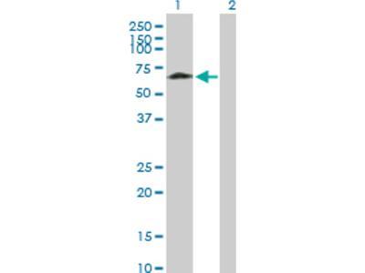 DLGAP4 Antibody