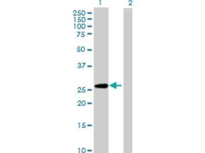PAFAH1B3 Antibody