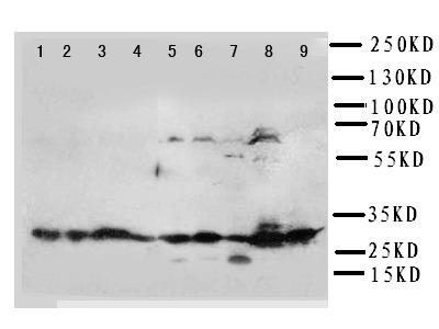 KLK6 / Kallikrein 6 Antibody