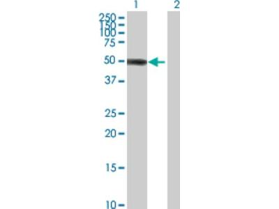 ZBTB12 Antibody