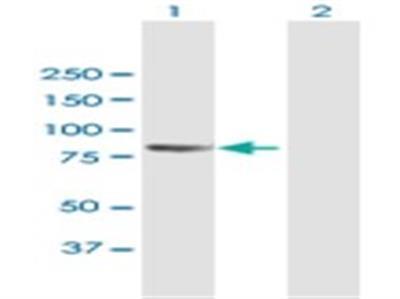PCDHB2 Antibody