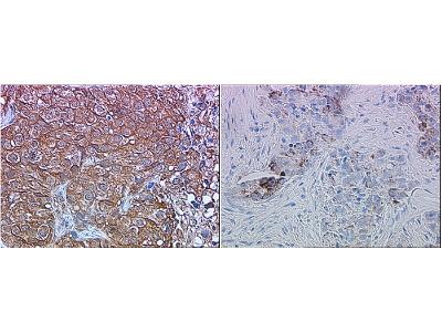 ERBB2 / HER2 Antibody