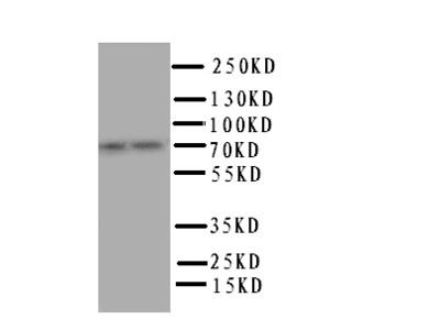 PPP1R15B Antibody