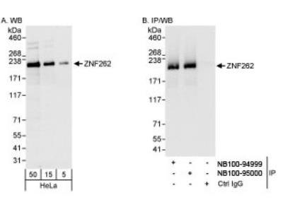 Rabbit Polyclonal ZMYM4 Antibody