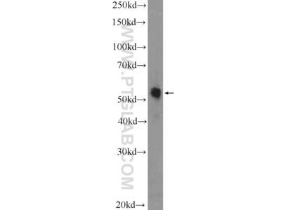 TRMT61B antibody