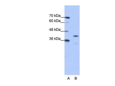 anti-CPEB2 antibody